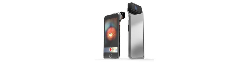 D-EYE, l'oftalmoscopio a portata di smartphone